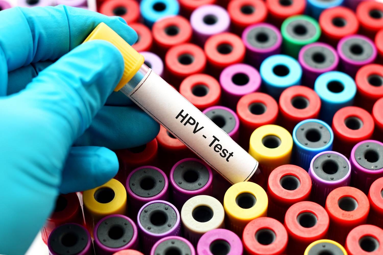 hogyan lehet gyógyítani a papillomavírus emberét hpv és fejrák