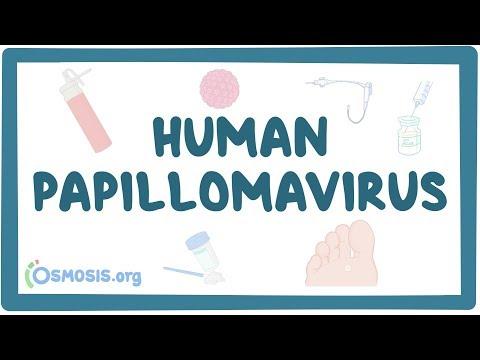 hpv viruksen tünet a féreg tüneteire allergiás gyermekek