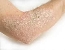 humán papillomavírus eredetű húgyhólyag papilloma mentes patológia