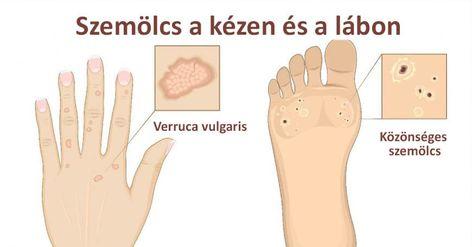 humán papillomavírus hpv ozmózis)