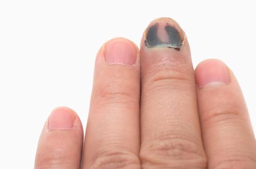 bőr körömrák a vakbél rosszindulatú daganata
