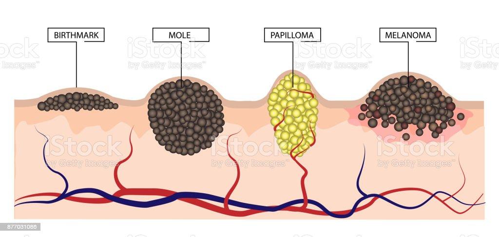 melanoma papilloma
