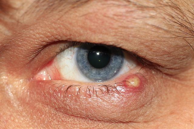 Papilloma az alsó szemhéj szemén - Chicken pox October