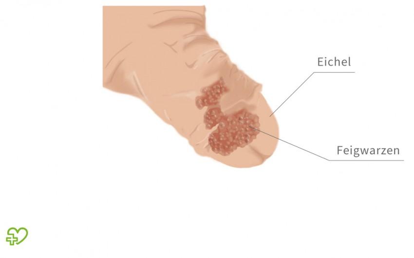papilloma vírus az ugolán