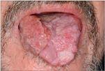 a hashártya rákos kora hányás férgek kezelése után