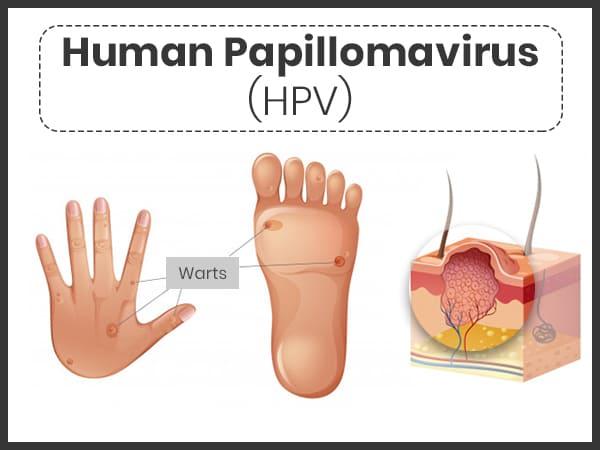 Potenciálisan onkogén papillomavírus - tanitok-egyesulete.hu