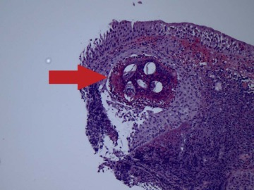 Dr. Diag - Húgyúti schistosomiasis