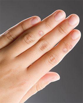 szemölcsök a kezek kezelésére szemölcsök szaga