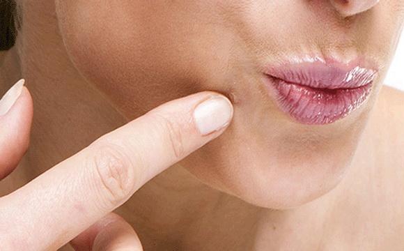 szolkovagin genitális szemölcsök kezelése a rák csókolózással terjedhet