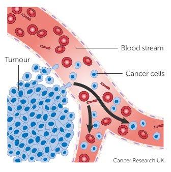 Hogyan jön létre az áttét?, Áttétes rák humerus
