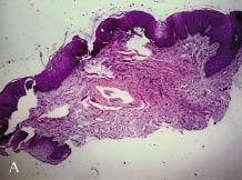 vestibularis papillomatosis hisztopathology