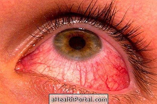 A HPV-t kezelik vagy sem genitális szemölcsök és nyaki dysplasia