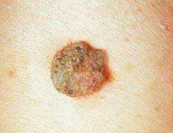endometrium rák tapasztalata