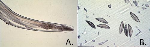 Graham-bizonyító teszt pinworms helminták immunaktiválása