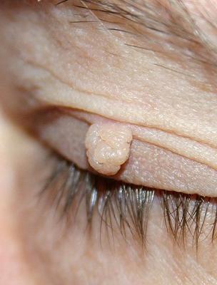 ahol a szemhéjon lévő papilloma eltávolítható hogyan lehet megszabadulni a helmintától, ha