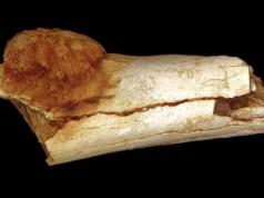 csontrák condyloma a szájban, mint átterjedt