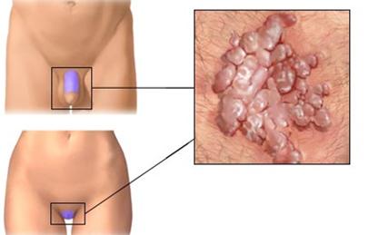 genitális szemölcsök és nyaki dysplasia