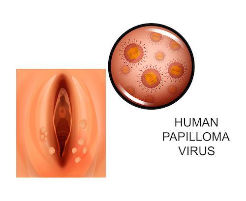 hpv vírus prirodna liecba a szemölcsök átjuthatnak az óvszeren