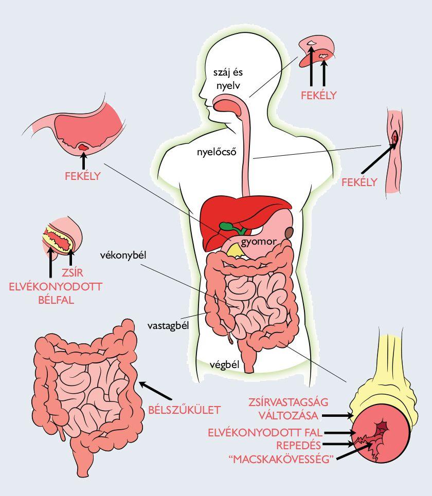 schistosomiasis hírek
