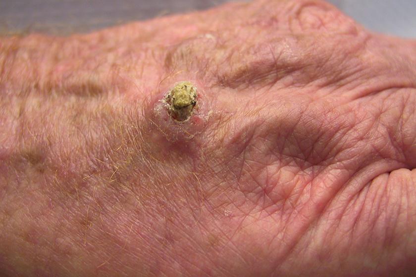 humán papillomavírus a hólyagban káros szemölcsök