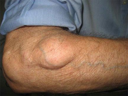 papilloma a bőr alatt fertőtlenítés és kezelés az ektoparaziták ellen