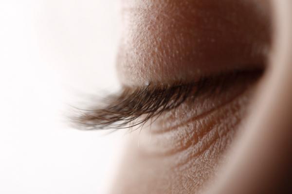 távolítsa el a szem alatti papillómát