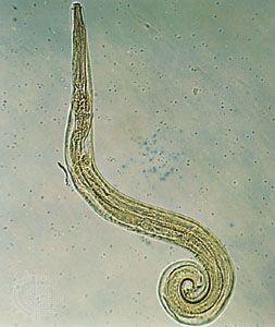 pinworms leírás enterobius vermicularis pinworms kezelés