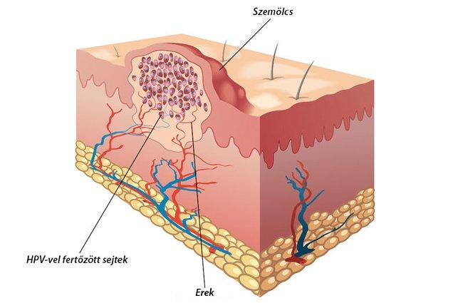 a genitális szemölcsök biopsziájának eltávolítása elidőzik