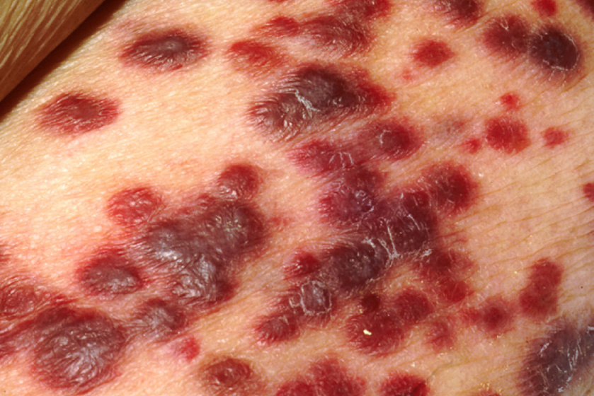 a bőr szarkóma rákja