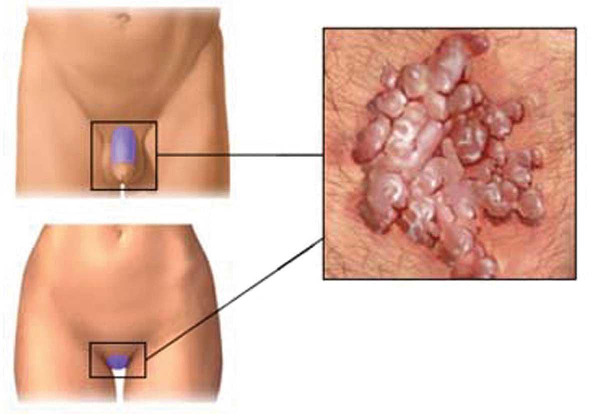 Hpv positivo come si prende Papilloma virus tedavisi