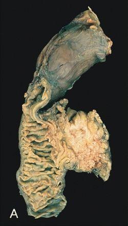 hasnyálmirigyrák hasnyálmirigy-gyulladás