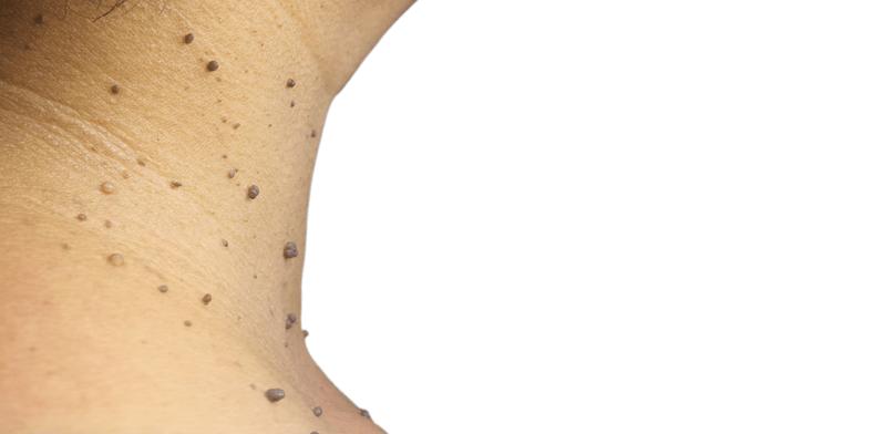 papilloma a hónaljban talpi szemölcsök segítenek