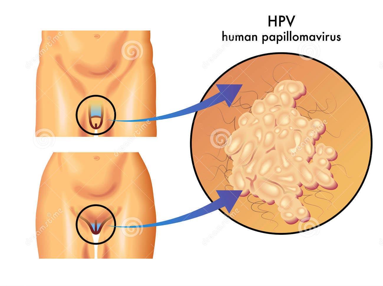 papilloma vírus donne condyloma nem herezacskó