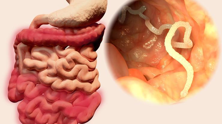 Bacteria giardia simptome, Свежие записи