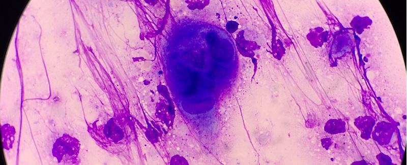 petefészekrák sárga váladék a genitális szemölcsök összezavarodhatnak